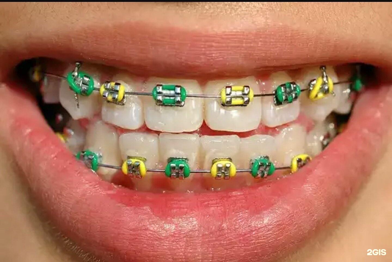 Фото пластинок на зубы детям
